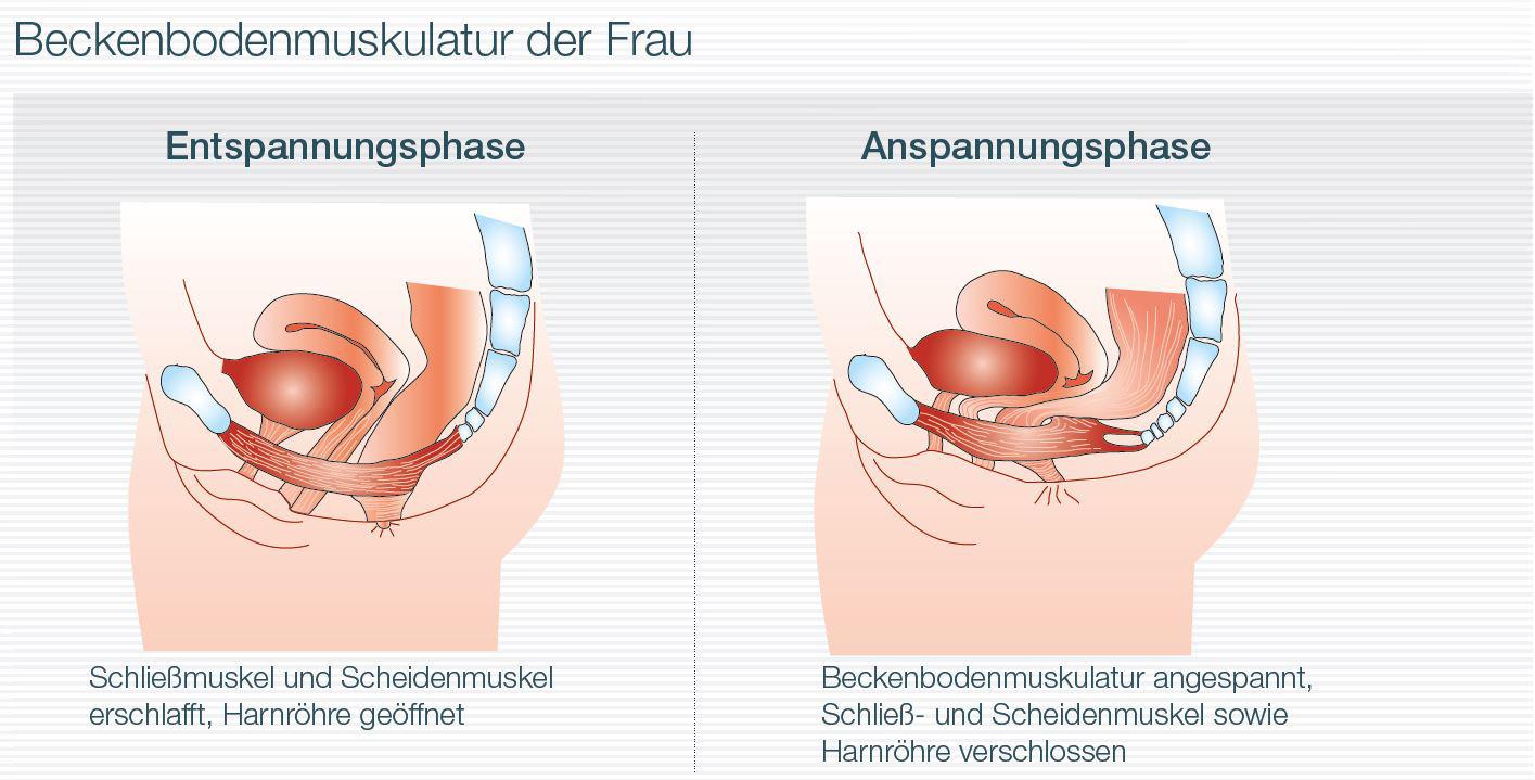 Bei Blasenschwäche hilft das Training der Beckenbodenmuskulatur
